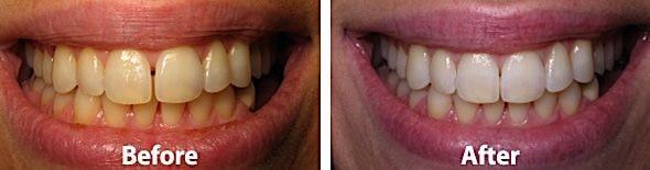 Teeth Gap Fixed Pittsburgh